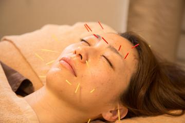 美容鍼は千葉の鎌取・おゆみ野にある鍼灸サロン Komachi 美容鍼画像